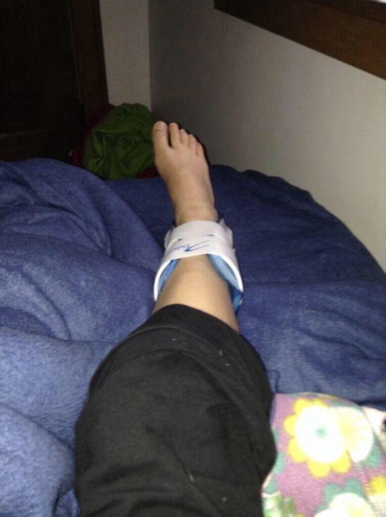Air Cast/Broken Ankle | Sprain/Broken Ankle/Broken Foot ...