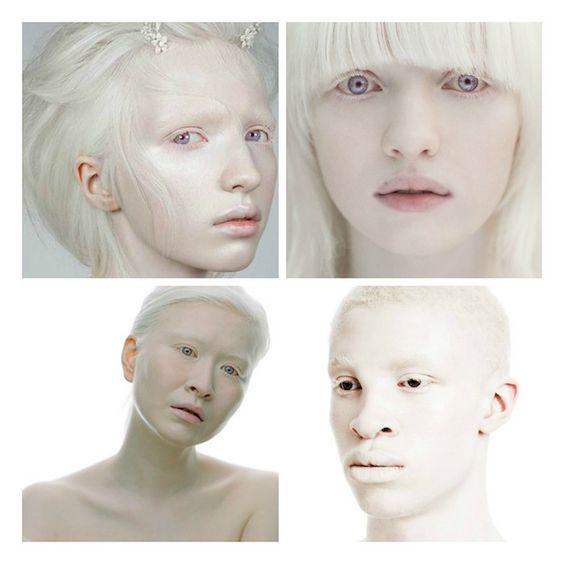 albinos beauty