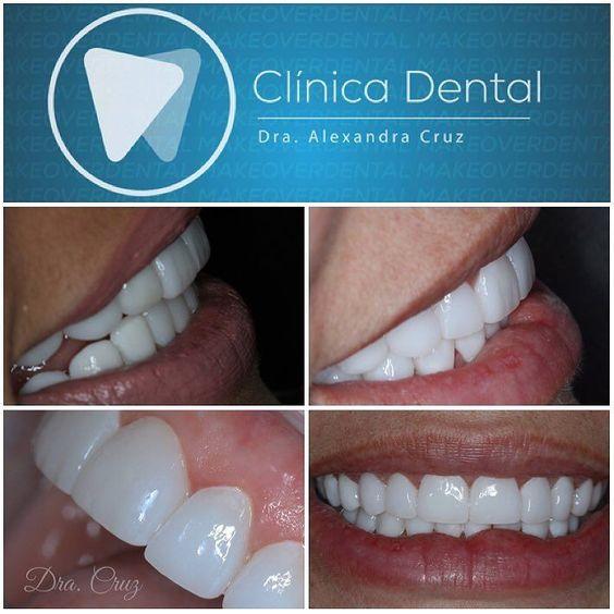 SONRISA DE IMPACTO La libertad de escoger el color que deseas y la forma que deseas #dentalmakeover #dracruz #smiledesign #veneers #diseñodesonrisas @dracruz by dracruz Our Dental Veneers Page: http://www.lagunavistadental.com/services/cosmetic-dentistry/veneers/ Other Cosmetic Dentistry services we offer: http://www.lagunavistadental.com/services/cosmetic-dentistry/ Google My Business: https://plus.google.com/LagunaVistaDentalElkGrove/about Our Yelp Page…