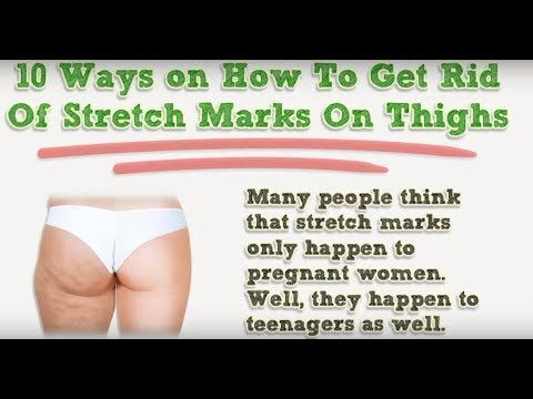 2061d21a95ab2ad040d7487a383e6eac - How To Get Rid Of Stretch Marks On Thighs Teenager