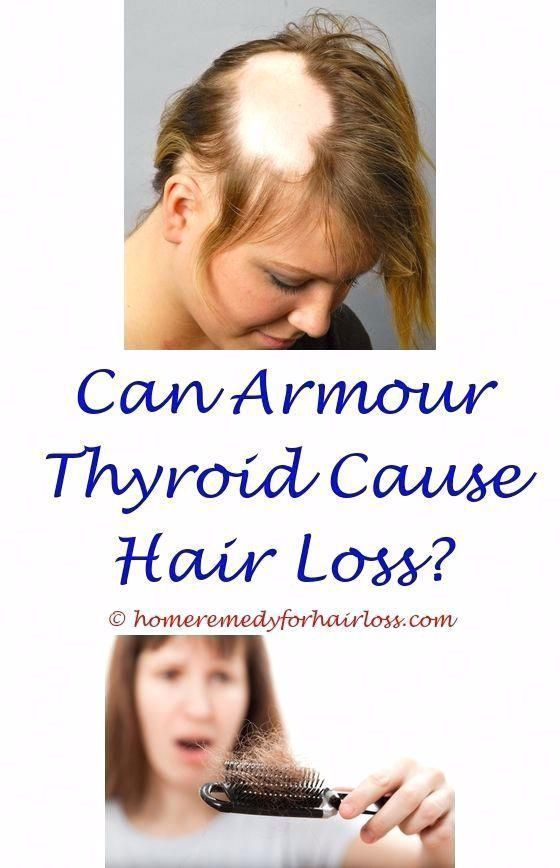 why does glucosamine cause hair loss