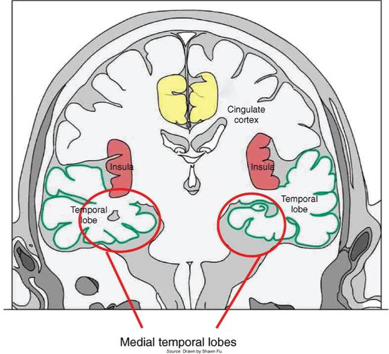 temporal lobes Kids with temporal lobe epilepsy (tle) have seizures that start in one of the  temporal lobes of the brain seizures usually get better with medicine.
