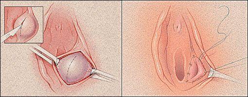 Bartholin Cyst Removal Bartholin Cyst Treatment Women Health