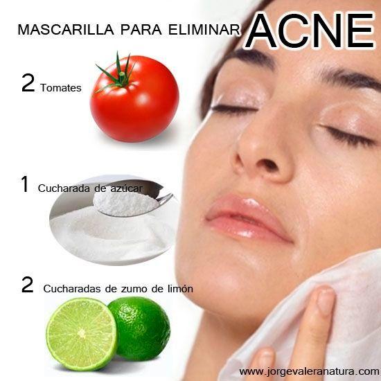 mascarillas caseras para eliminar el acne
