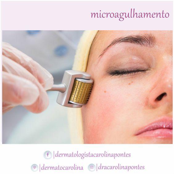 O microagulhamento é um tratamento inovador que estimula a produção de colágeno através da indução percutânea em um processo cicatrizante.  O tratamento aumenta em 400 vezes a quantidade de colágeno na pele. Por isso, a técnica é adotada por pacientes que querem mais rejuvenescimento ou combater manchas, rugas, estrias, cicatrizes, inclusive de acnes ou de queimaduras.  Agende a sua consulta!      Rua Luis Spinelli - Cobertura 501, Centro | Nova Friburgo  (22)2522-6983
