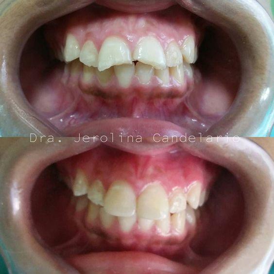 No permitas que nada te impida sonreír y menos cuando el problema tiene solución!!!! Haz tu cita  809-732-2130 Dra. Jerolina Candelario #DENTALVIPPLUS #odontolife #odontologia #saludbucal #dentistica #dentistry #oralcare #dental #teeth #smile #dentalcare #composite #restauracion #RD by dra.jerolinacandelario Our General Dentistry Page: http://www.lagunavistadental.com/services/general-dentistry/ Google My Business: https://plus.google.com/LagunaVistaDentalElkGrove/about Our Yelp Page…