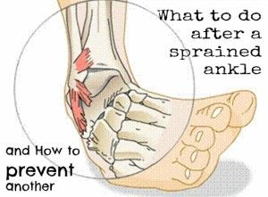 You can never truly heal your tendons after they are sprained but you can do this to heal your foot and prevent future injuries...