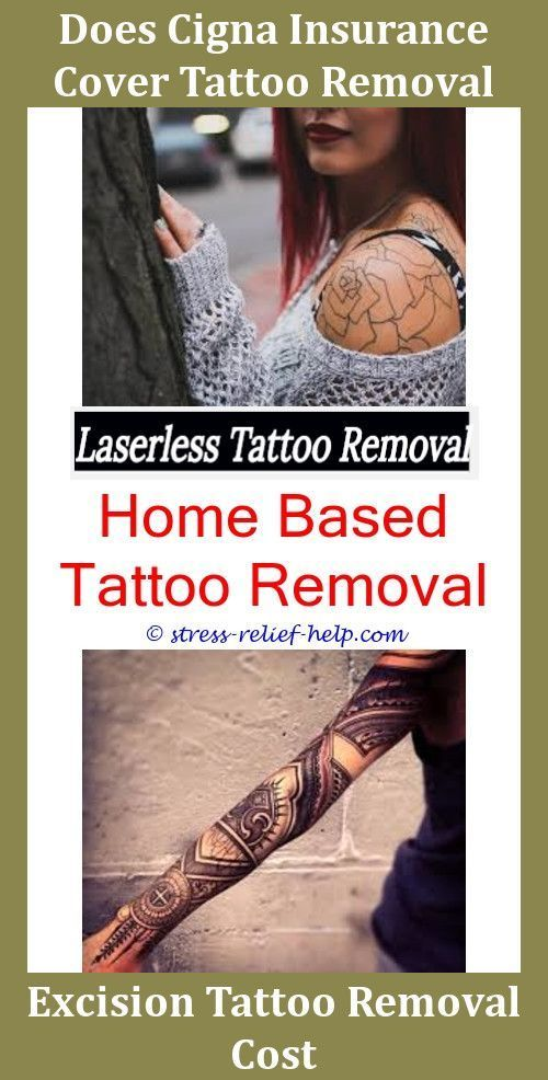 New Tattoo Removal Tattoo Removal Hawaii Best Laser For Tattoo