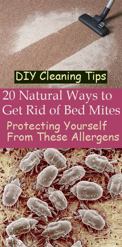 2137ab3ad04339358773af0ddcdd5aaf - How To Get Rid Of Mites On Skin Naturally