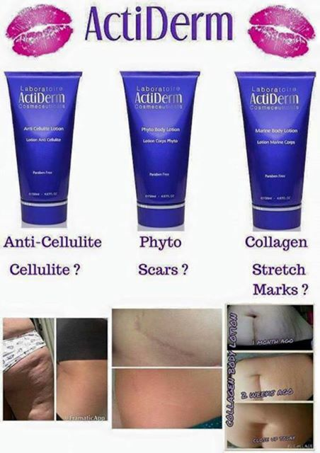 SKINCARE MIRACLES £11.50 plus P&P https://www.actiderm.co.uk/me/angela-jones/body-care/