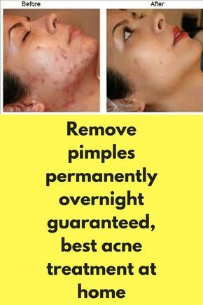 Remove Pimples Permanently Overnight Guaranteed Best Acne Treatment At Home In 2020 How To Remove Pimples Acne Treatment At Home Best Acne Treatment