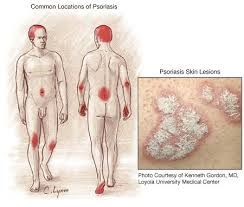 http://www.whatworkedfor.me If you have scaly, red blotches of skin on your body you may well have psoriasis. Read all of the detail onWebMDif you want to know all the details (but come back because there is no solution to find there).