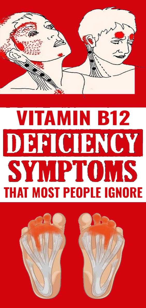 5 Warning Signs Of Vitamin B12 Deficiency You Should Never Ignore Health And Nutrition Health Vitamins
