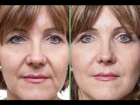 Reduce And Remove Mouth Wrinkles And Laugh Lines On The Face Using Face Exercises