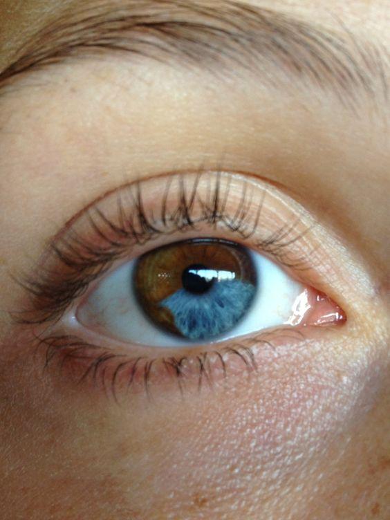 Natural Heterochromia Human