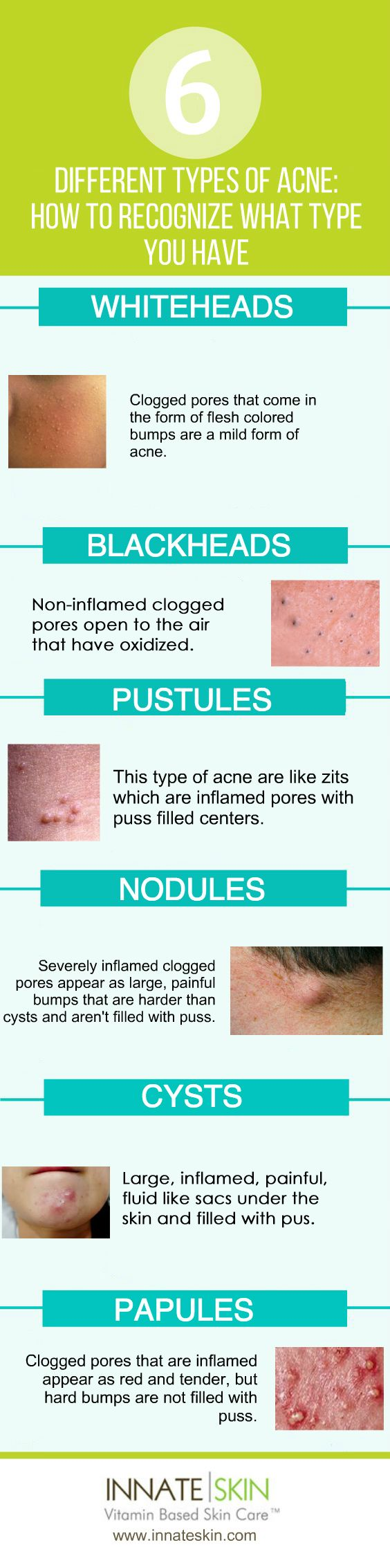 Different types of acne can sometimes require different treatments. Knowing the different types of acne you may have can be a key piece of the puzzle towards clear skin.  In general, acne and all of its variations are caused by oxidized sebum and clogged pores. Here is a list of the main types of acne and a […]