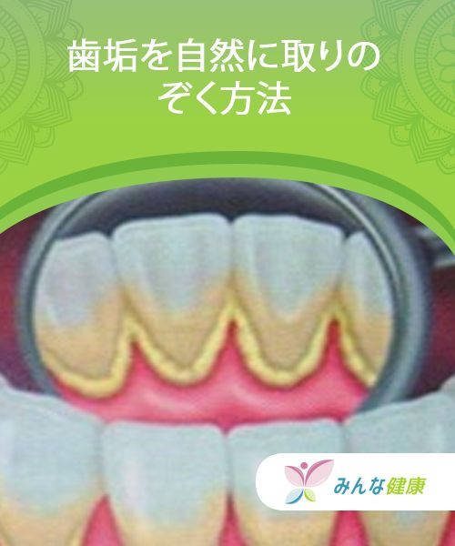 自宅でできる簡単な歯垢の落とし方 みんな健康 健康な歯 歯垢 歯 ホワイトニング