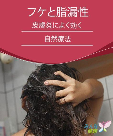 フケと脂漏性皮膚炎によく効く自然療法 脂漏性皮膚炎 皮膚炎 自然療法