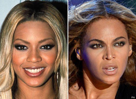 nose plastic surgery | Photos / Celebrity plastic surgery: Did Beyoncé have a nose job?
