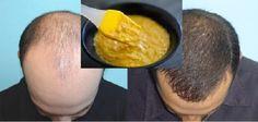 Masque fait maison efficace pour booster la pousse des cheveux avec de la biere jaune d'oeuf miel.