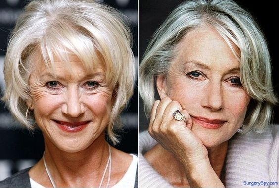 Actor, #HelenMirren - Before and After: Cosmetic surgery
