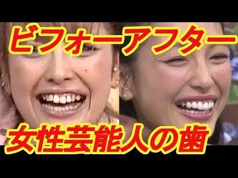 アフター ビフォー 歯 矯正 列