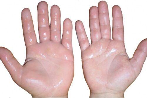 Schwellungen in den Händen können unterschiedliche Gründe und Ursachen haben: Prellungen, schlechte Durchblutung, Karpaltunnelsyndrom oder Insektenstiche können beispielsweise zu geschwollenen Händen führen. Für all diese Fälle gibt es nützliche und hilfreiche Hausmittel, um die Schwellungen abklingen zu lassen. In diesem Beitrag stellen wir einige davon vor.