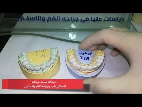 الفرق بين تركيبات الزيركون الالماني والزيركون الصيني Youtube Dental Wic Sly