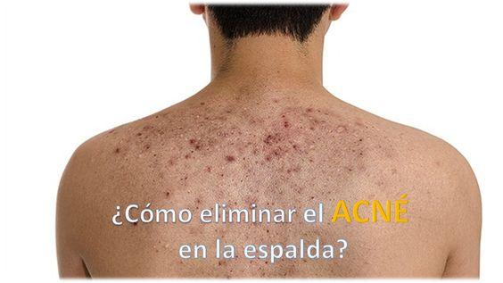 ¿Cómo eliminar el acné en la espalda?
