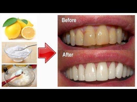 25+ Cara memutihkan gigi secara alami inspirations
