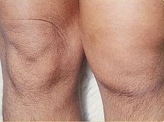 """""""Reactive arthritis is classified as an autoimmune condition that develops in response to an infection in another part of the body (cross-reactivity).... Dactylitis, or """"sausage digit,"""" a diffuse swelling of a solitary finger or toe, is a distinctive feature of reactive arthritis and other peripheral spondylarthritides but can also be seen in polyarticular gout and sarcoidosis."""" Can be caused by Yersinia enterocolitica, as can Graves' disease."""