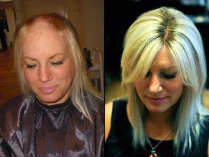women s hair loss specialist opens beverly hills salon