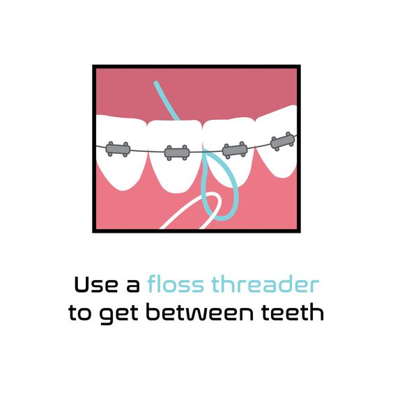 YES, YOU STILL NEED TO FLOSS even while wearing braces. It's easier with a floss threader! Check the best technique with our hyginiest on your coming dental clean visit. #LondonSmileCare