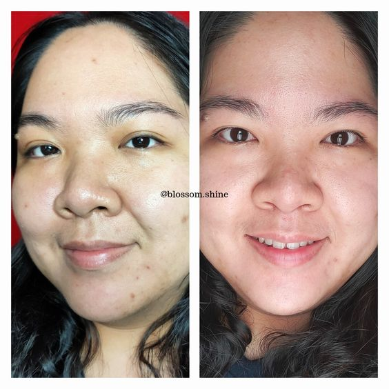 Before & After menggunakan Clinelle Essential Care