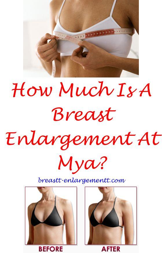 Breast enlargment finance