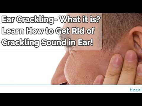 10 Best Ways To Get Rid Of Popping Ears Prevention Tips Youtube How To Get Tips How To Get Rid