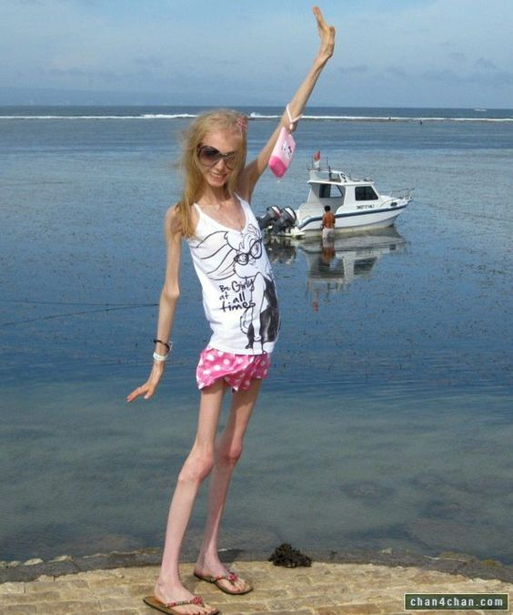 Anorexia Nerviosa....!