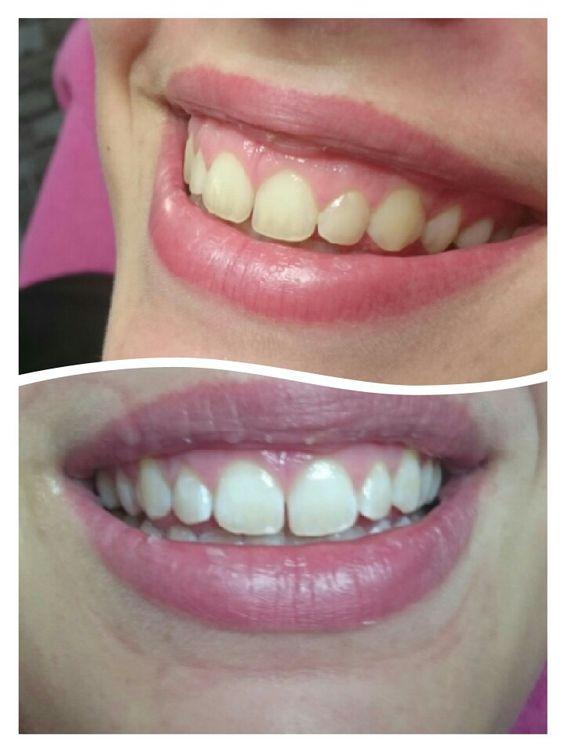 Nu ook tanden laten bleken bij natasha nails