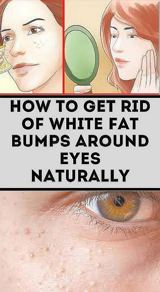 23ceb104f338513e95a4d0e6f43989b7 - How To Get Rid Of Small White Bumps On Lips