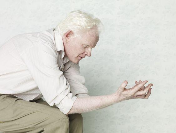 """Albinos"" é um ensaio fotográfico de Gustavo Lacerda onde o albinismo é retratado de forma delicada e bela."