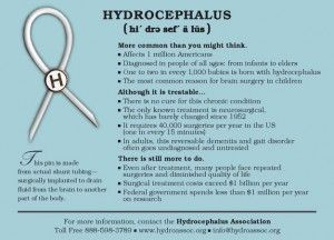 Hydrocephalus prognosis for adult