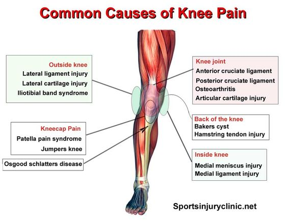 Where is your knee pain and what could be causing it ...