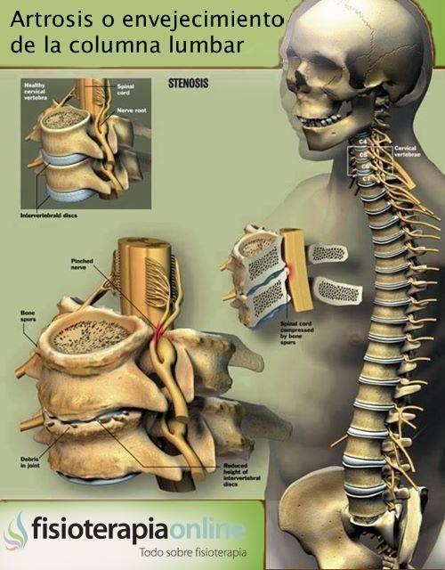 59-explicando la artrosis