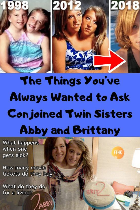 The Things You Ve Always Wanted To Ask Conjoined Twin Sisters Abby And Brittany Twin Sisters Conjoined Twins Stay Young