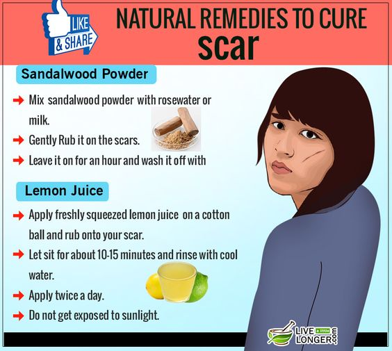 Home remedies to get rid of scars in your body #scars #remedies #removal