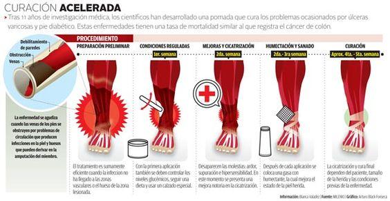Mexicano desarrolla un gel que evita las amputaciones.