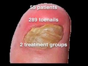 Great Nail Art Designs Youtube Tiny How To Peel Off Nail Polish Regular Drinking Nail Polish Remover Nail Polish Halal Young Opal Nail Polish WhiteAcrylic Nail Art Pictures Different Types Of Toe Fungus Treatment   Nail Fungus Treatment ..