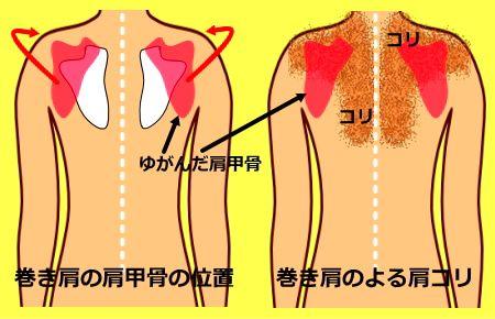 肩 筋 トレ 巻き