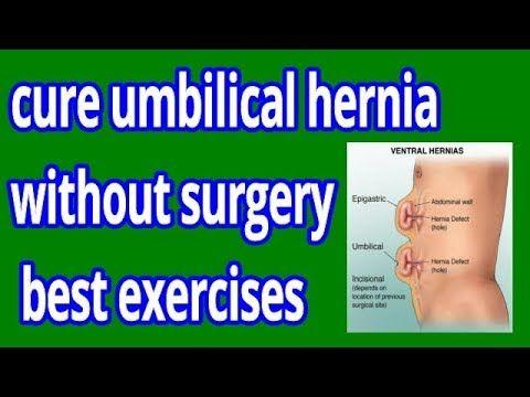 Pin On Hernia Help