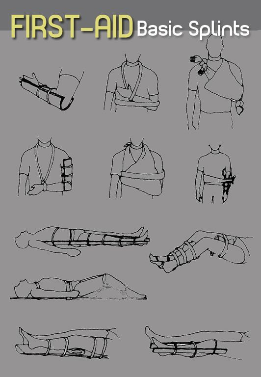 Basic Splints For Broken Bones And Fractures To Make Splints You Can Also Use A Sam Splint A First Aid Kit Ite First Aid Tips First Aid Wilderness First Aid